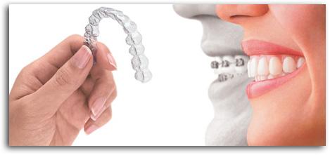 ortodonzia fissa e ortodonzia intercettiva